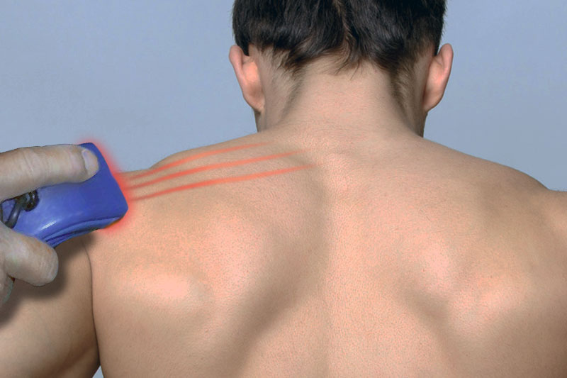 Cumming Chiropractic at Stover Sports Injury and Wellness Cold Laser Therapy