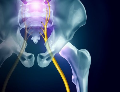 Sciatic Pain and What Chiropractic Care Can Do To Help